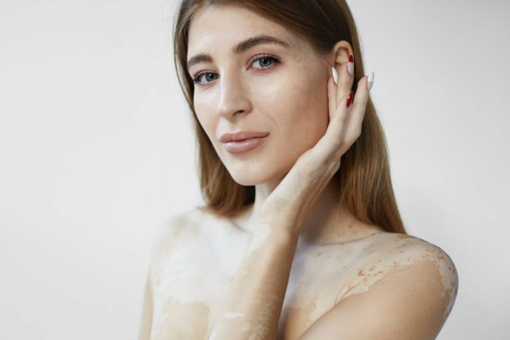 femme vitiligo