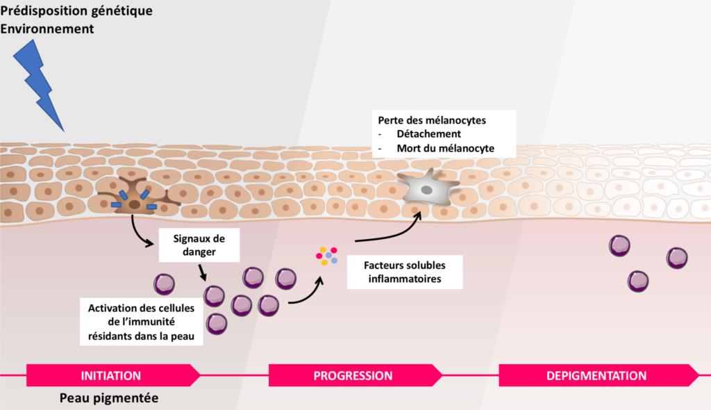 Mécanismes du vitiligo