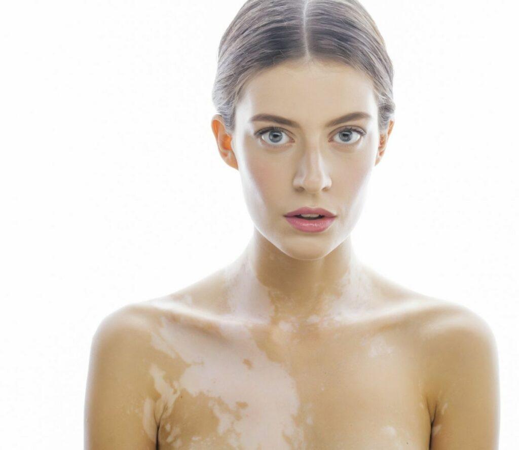 Femme atteinte de vitiligo sur fond blanc