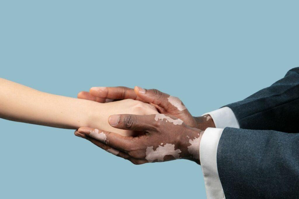 deux mains vitiligo