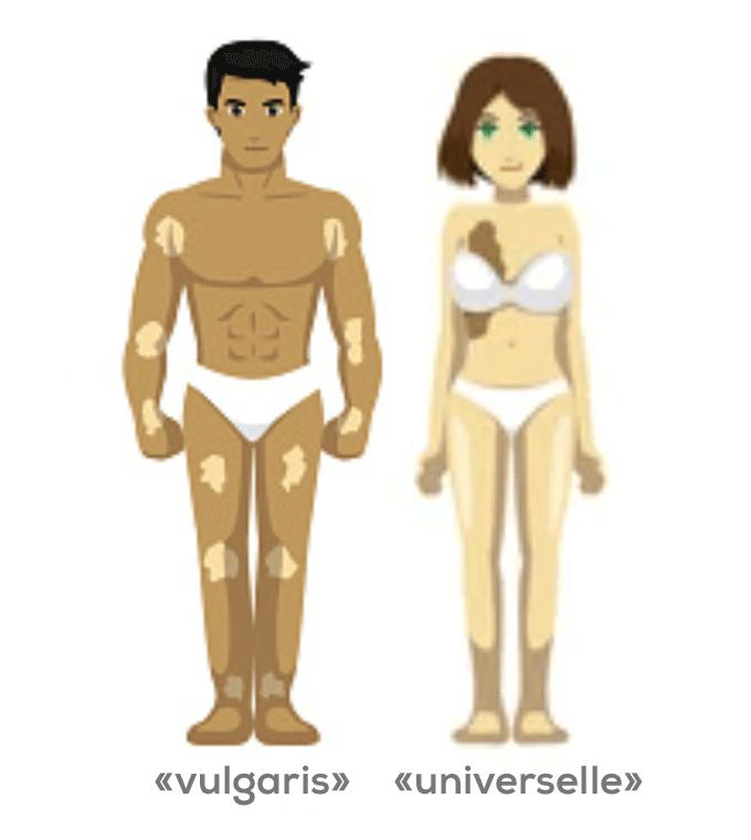Type de vitiligo généralisé
