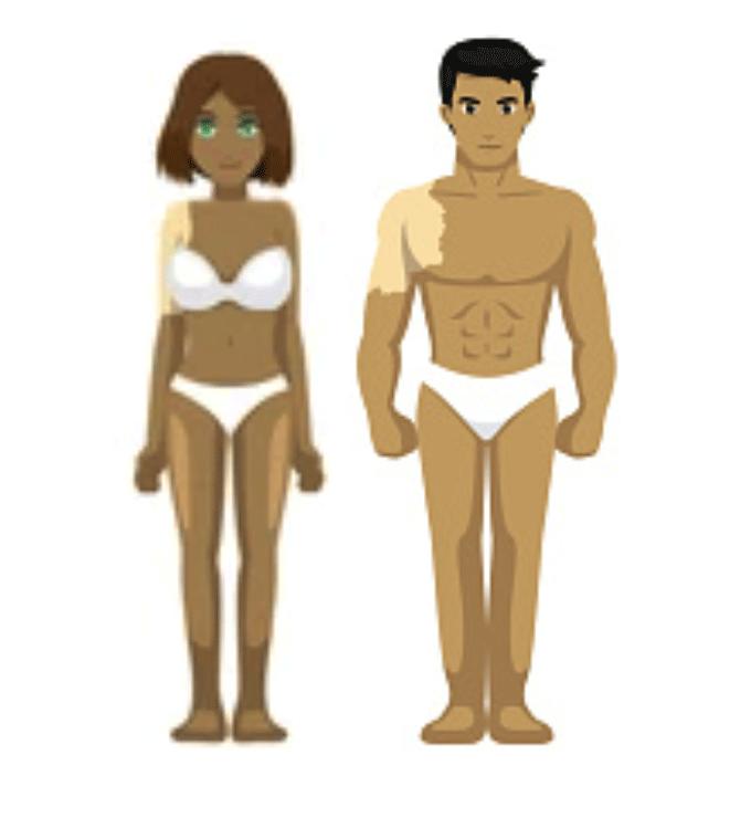 Type de vitiligo segmentaire