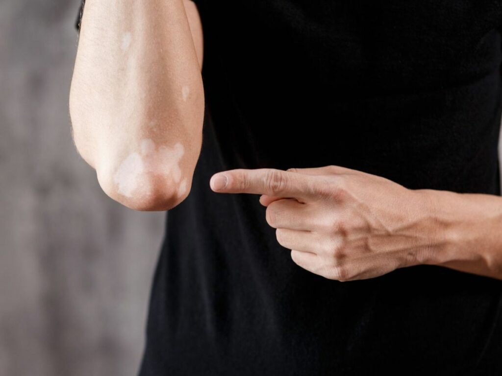 Types de vitiligo coude