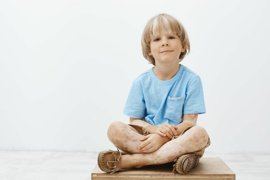 enfant vitiligo