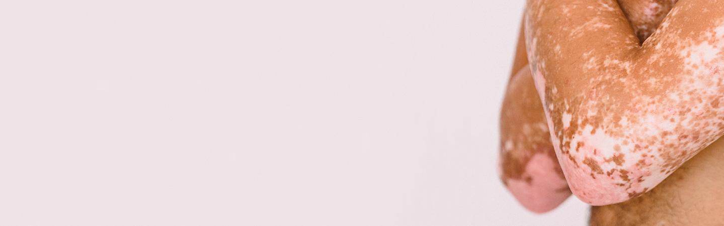 femme pigmentée taches vitiligo