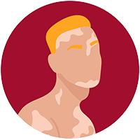 illu homme pigmenté taches vitiligo