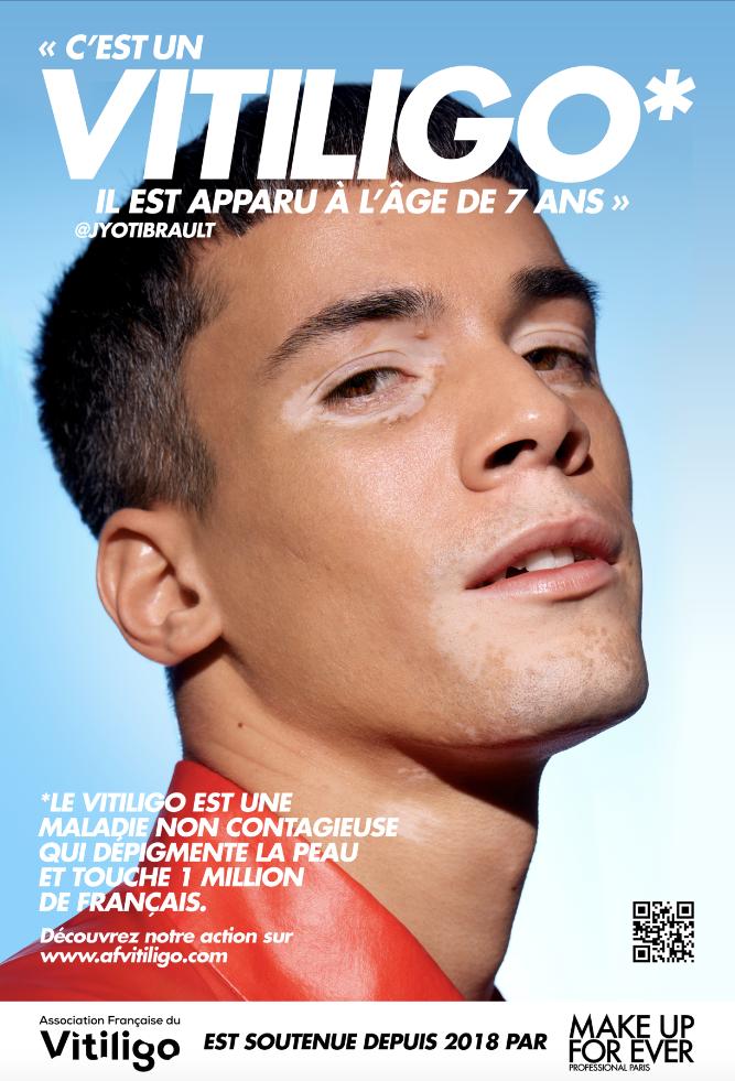 Affiche Make Up For Ever vitiligo Jyoti Brault
