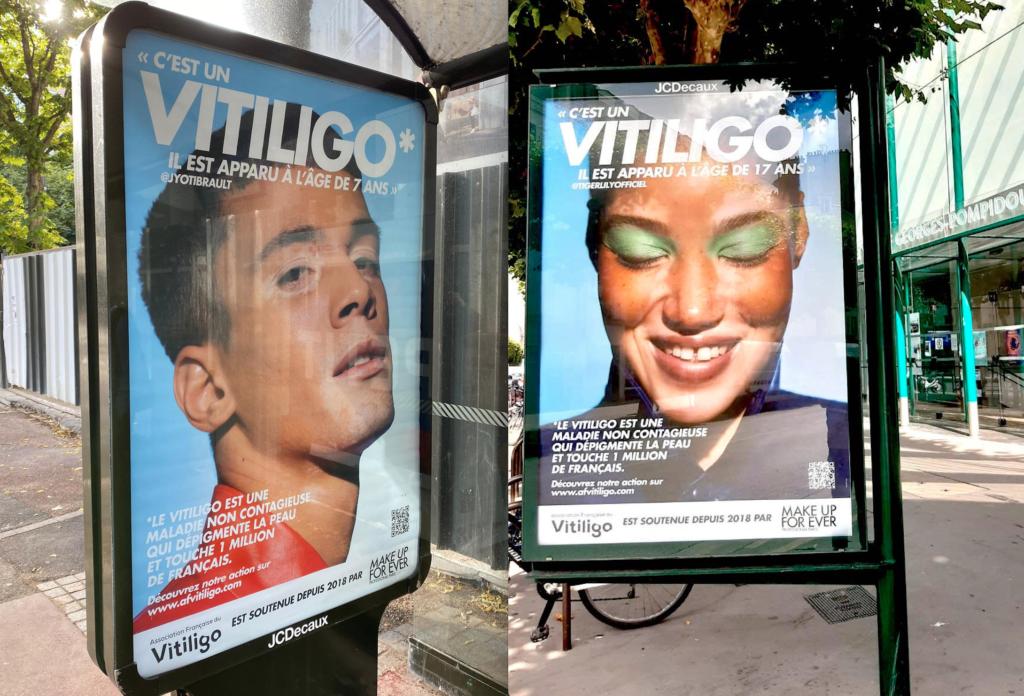 Affiches vitiligo France