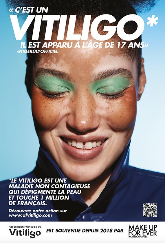 Affiche Make Up For Ever vitiligo Tiger Lily
